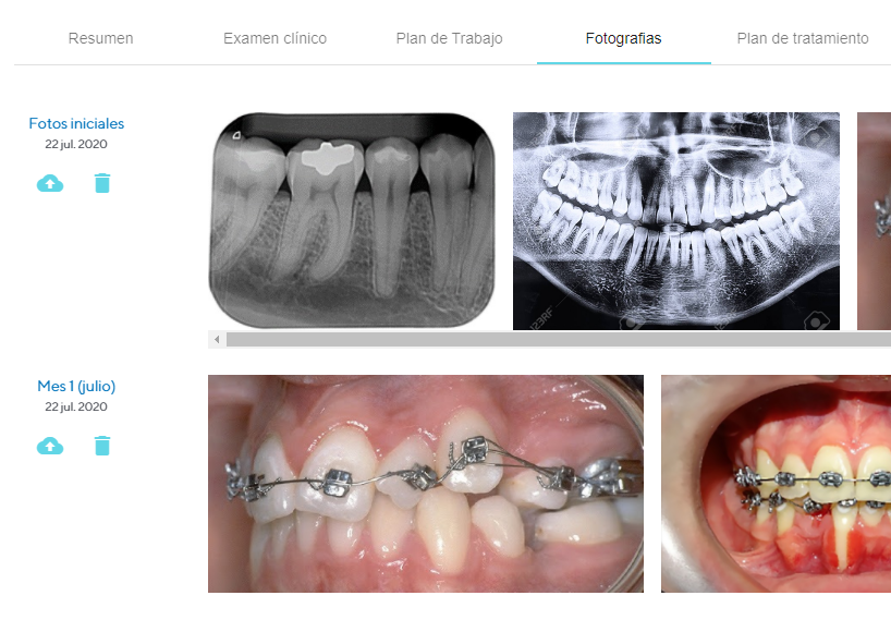 ortodoncia fotografias